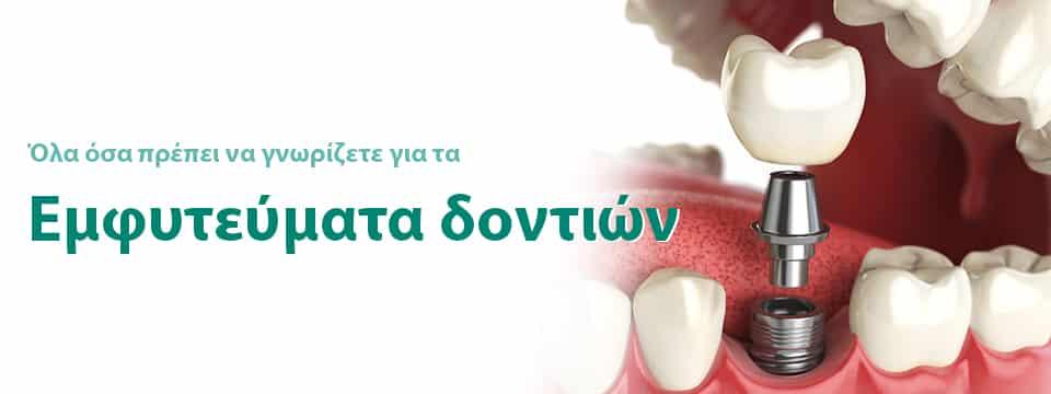 εμφυτεύματα δοντιών σε ιατρείο στην Θεσσαλονίκη